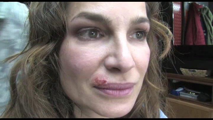 Alexandra Kamp bekommt Herpes - Featurette Poster